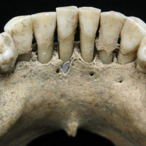 Denture with traces if lapis Lazuli